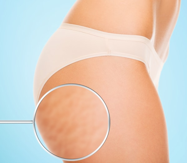 Liposuction: Can It Cause Cellulite?