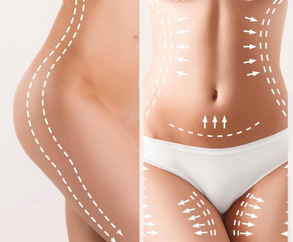 Revision Liposuction