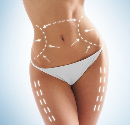 Discover the popular areas of the body to have liposuction