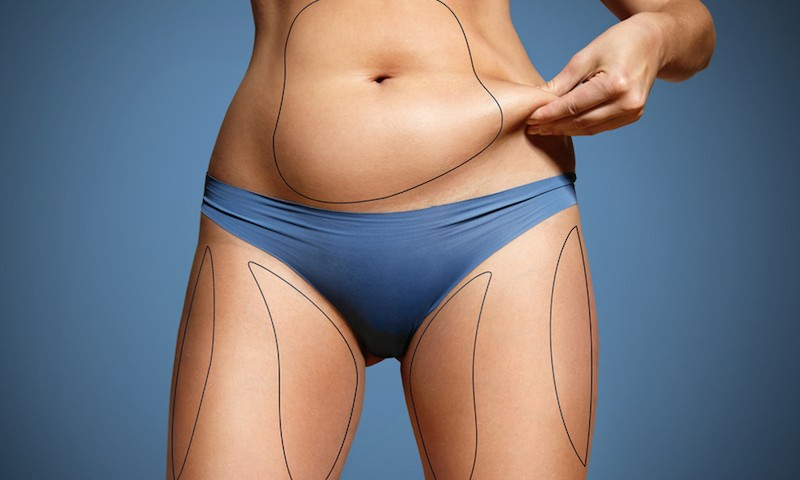 Learn about liposuction