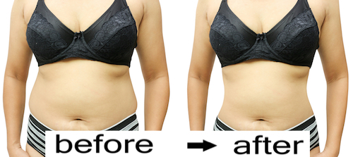 Results after having a liposuction