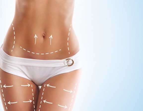 Liposuction options to remove fat