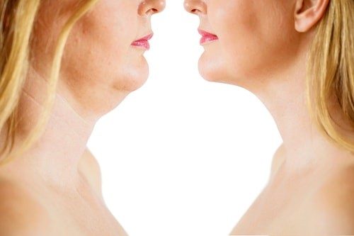 Results after Chin Liposuction