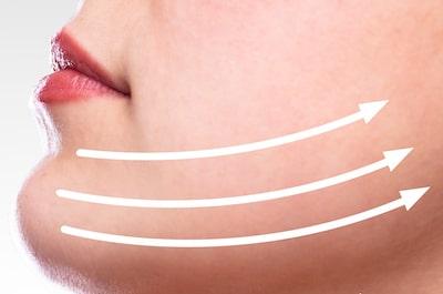 Details about cheek liposuction